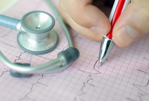 Diagnóstico de una arritmia cardíaca - Salud al día