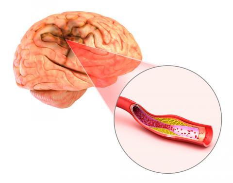 Isquemia cerebral