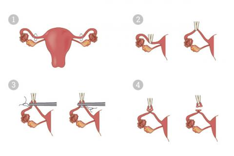 Fondo uterino a nivel del ombligo