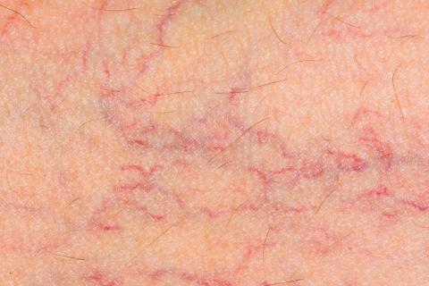 Síntomas de varices en la piel