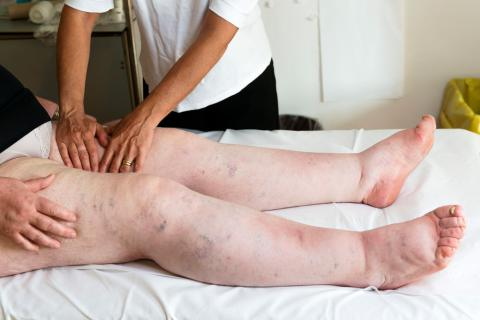 Masajista ayuda a reducir la hinchazón de las piernas