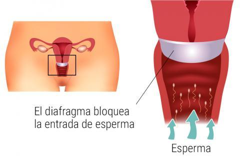 Contraindicaciones del diafragma cervical