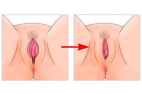 """Resultat d'imatges per a """"vaginoplastia"""""""
