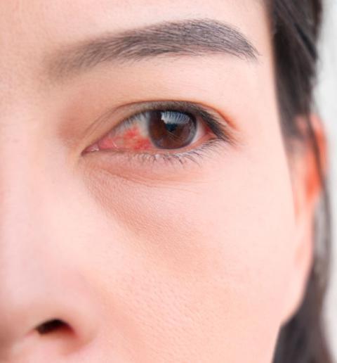 Alergias En Ojos Y Oidos Sintomas Y Manifestaciones Salud Al Dia
