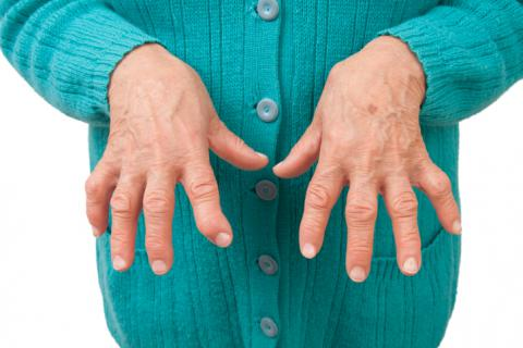 Dieta para la artritis degenerativa