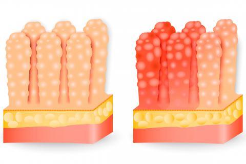 Gastroenteritis aguda que tomar