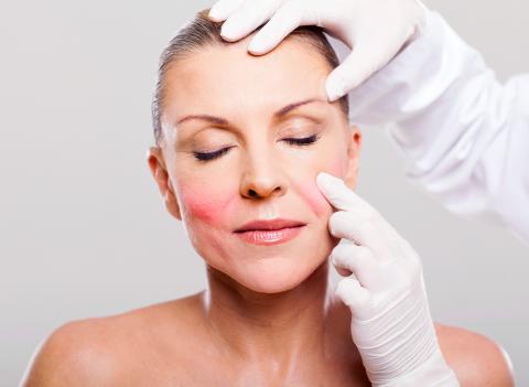Diagnóstico de la rosácea en el dermatólogo