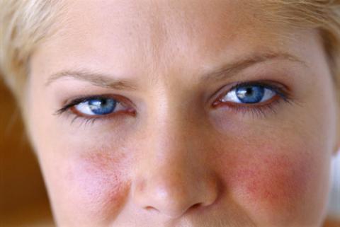 Síntomas de la rosácea y tipos - Salud al día