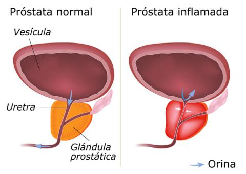 la prostatitis inflamatoria asintomática causa 3