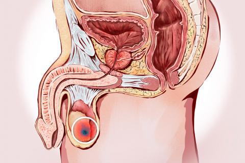 Cáncer de testículo, qué es y tipos
