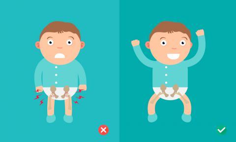 1cc4fccaa50 Qué es la displasia de cadera en bebés y por qué se produce