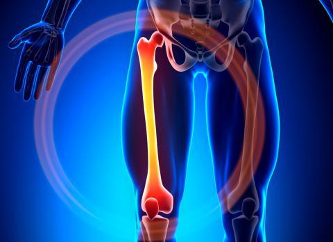 enfermedad ósea relacionada con diabetes
