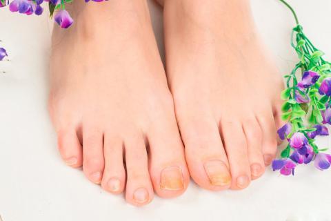 hongos en las unas de los pies medicamentos