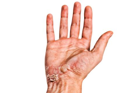 Quemaduras: primeros auxilios, tipos y cómo curarlas