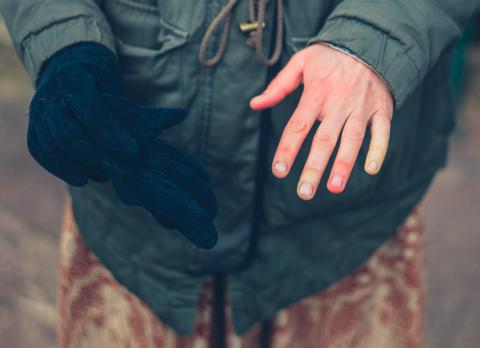 Persona con sabañones en las manos