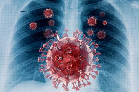 Tuberculosis con coinfección de COVID-19