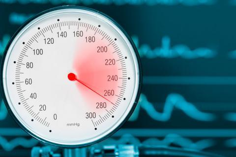 Los secretos de información privilegiada para Hipertensión definicion expuestos