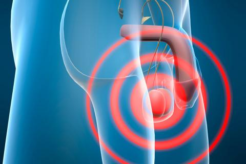 Cáncer de testículo Causas, síntomas y tratamiento