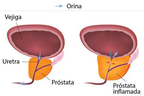 tamaño prostata y edad