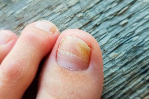 Onicomicosis Causas Síntomas Y Tratamiento