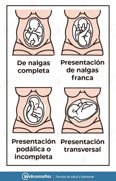 posicion del feto en el parto