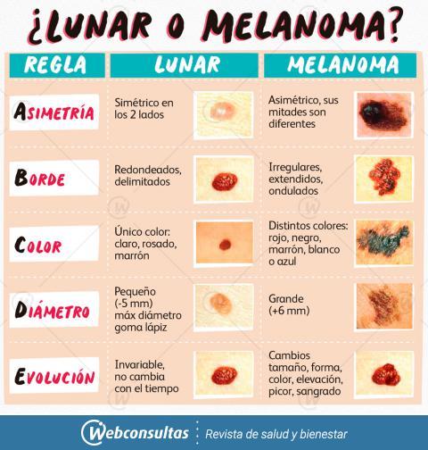 Melanoma signos y sintomas pdf