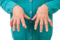 Causas de la artritis reumatoide