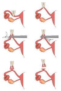 embarazo despues esterilizacion: